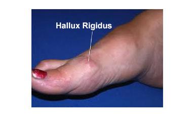 halluxrigidus2