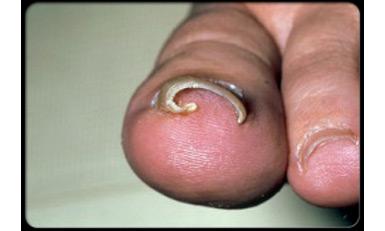 Les blancs sur les ongles des pieds de la raison le traitement