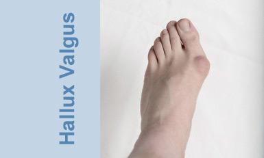 halluxvalgus