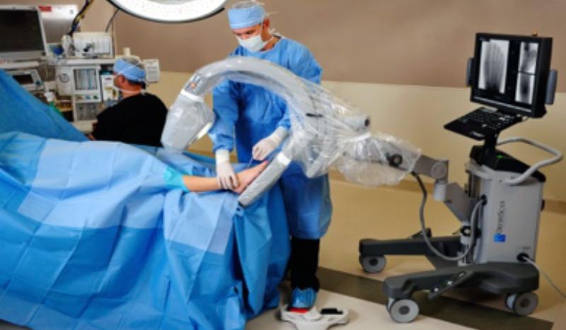 A propos de la chirurgie mini-invasive et percutanée