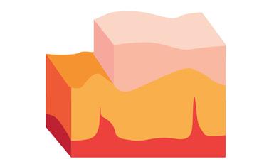 couches superficielles dites cornées, hypoderme, derme et épiderme.