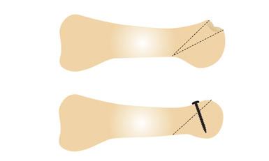 Ostéotomie. En armant l'ostéotomie par une vis ou sans ostéosynthèse, en enlevant un coin ou parfois sans en enlever , simplement en faisant glisser la tête