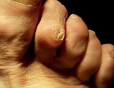 bursite inflammatoire surinfectee