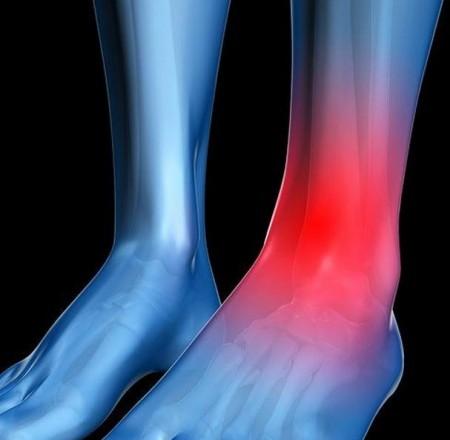 Ligamentoplastie LLA de la cheville avec le tendon Gracilis